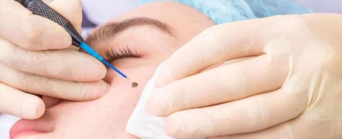 Rf Mole Removal Queensland Skin Clinic